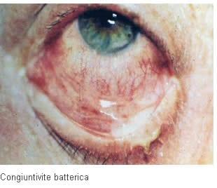Congiuntivite batterica
