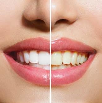 Sbiancare i Denti Gialli