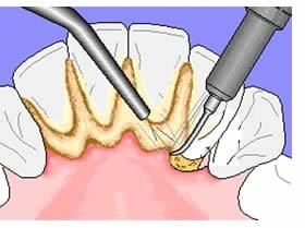 Detartarsi Professionale - pulizia denti