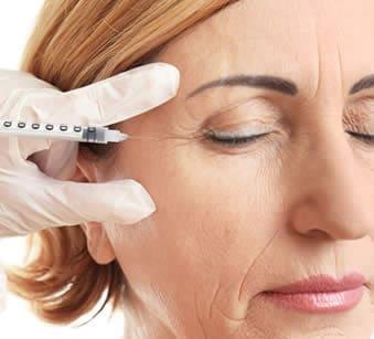 Trattamento delle rughe del viso con filler di acido ialuronico