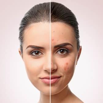 Pelle grassa - Cosmetici e Maschere