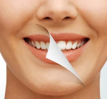 Sbiancamento Denti - Rimedi Naturali