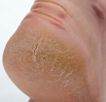 Eczema sulla testa a diabete