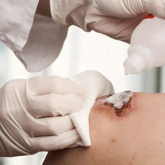 Antisettici - Disinfezione Ferite