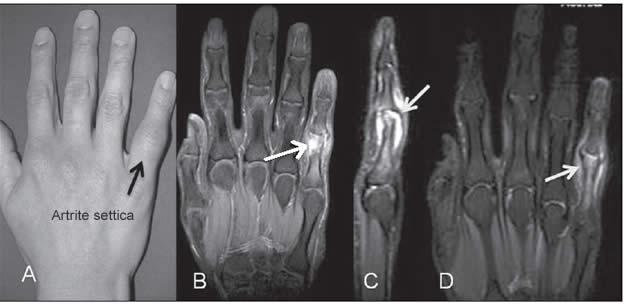 Artrite settica