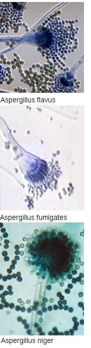 Aspergillus flavus, Aspergillus fumigates, Aspergillus niger