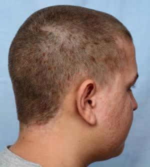 Dermatite Seborroica Rimedi Naturali