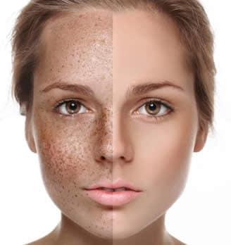 Che candeggiare posti di età pigmentary su una faccia