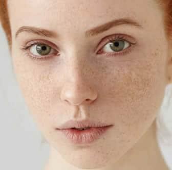 La crema cancellando pigmentary nota su una faccia