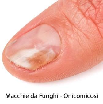 Macchie sulle unghie
