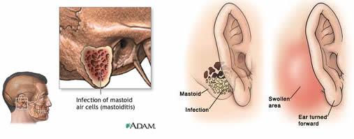 I mal di schiena riflessi a causa di una malattia