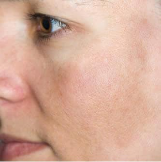 Decolorazione di pacchi di faccia