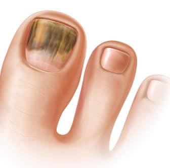 Micosi alle unghie: sintomi, rimedi e prevenzione