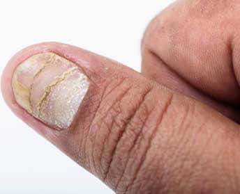 Che trattare un fungo su dita del piede