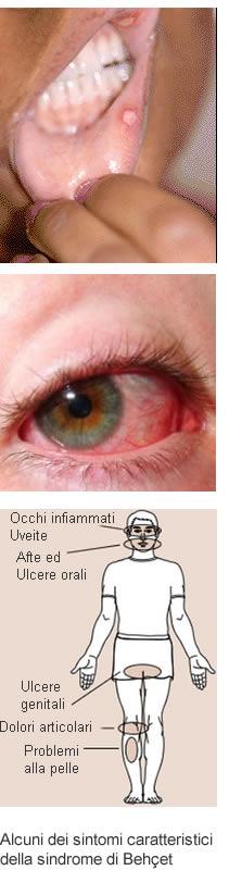 Varicosity e risposte urinoterapiya