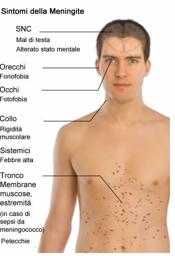 Meningite e sepsi da meningococco for Mal di testa da cervicale quanto puo durare