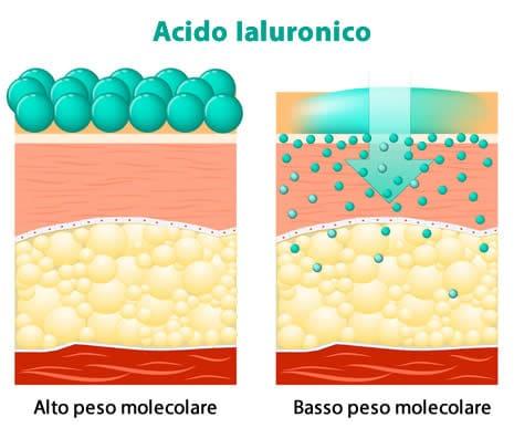 Acido ialuronico idrolizzato