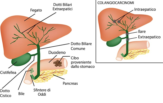 dieta per evitare coliche biliari