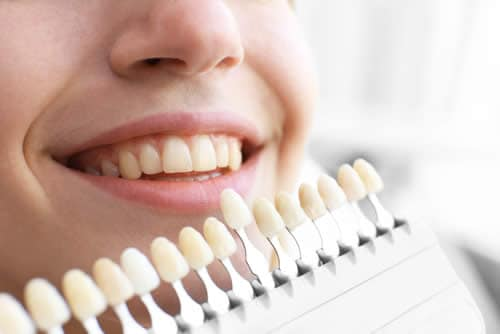 colore-denti