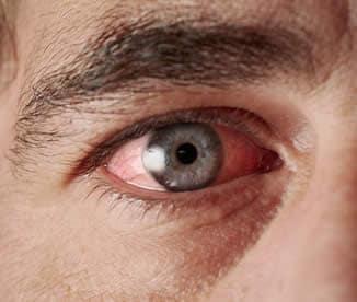 come trattare linfezione degli occhi del bambino
