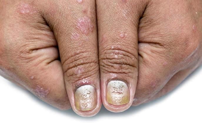 Macchie unghie psoriasi
