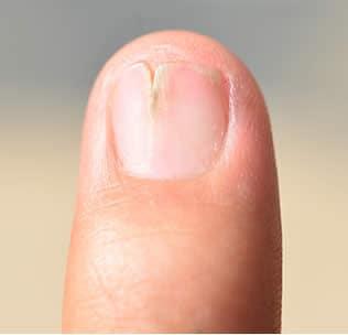 Fotografie di unghie malate 14