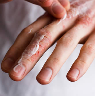 mani screpolate trattamento