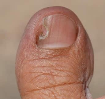 Macchia nera sotto l unghia