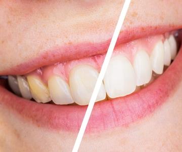 Risultati sbiancamento denti con penna