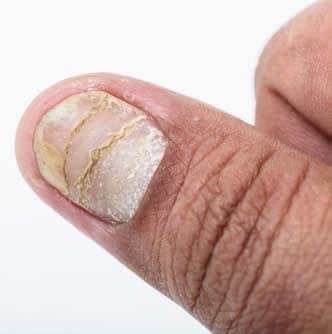 Psoriasi unghia
