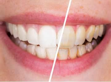 risultati sbiancamento denti laser