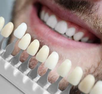 Scelta colore denti laser