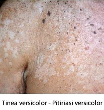Tinea versicolor