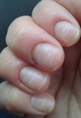 unghia bianca