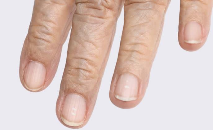 unghie bianche