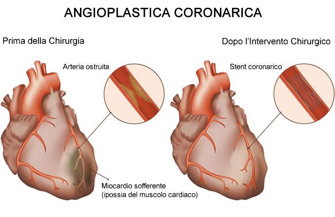 angioplastica-coronarica