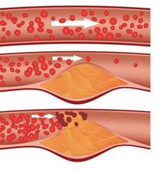Ateroma ostruzione flusso sanguigno