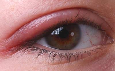 gonfiore sotto oculare
