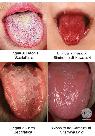Lingua Rossa