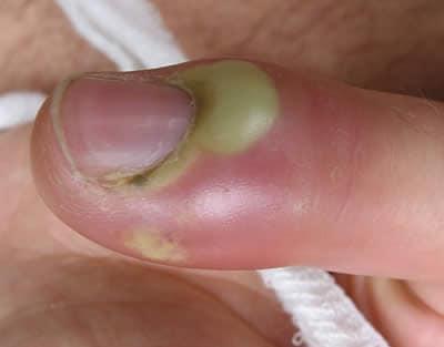 viene chiamato qualsiasi pus infiammatorio acuto che forma uninfezione batterica della pelle