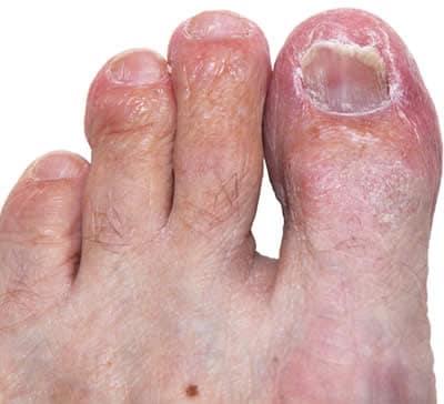 Le medicine si sono rivolte dentro a trattamento di un fungo di unghie