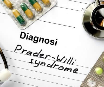 Sindrome di Prader-Willi