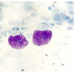 Mastociti