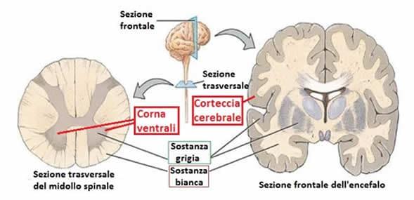 SLA motoneuroni