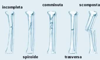 tipi di fratture