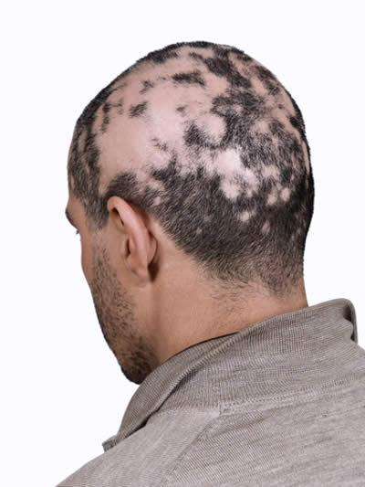 Alopecia Cause E Sintomi