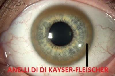anelli di Kayser-Fleischer