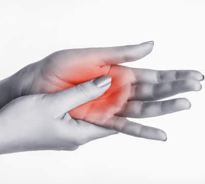 Formicolio alle Mani