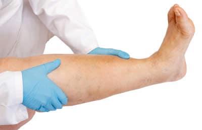 Trombosi di vena del trattamento di estremità più basso da sanguisughe