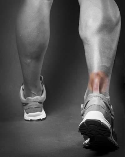 Infiammazione tendine Achille